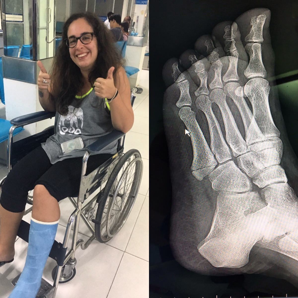I broke my first bone and got my firstcast!